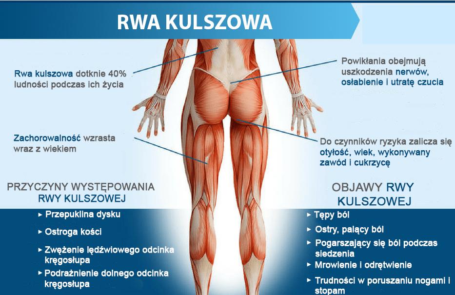 rwa kulszowa acuraflex polska